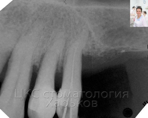 Высокая степень резорбции костной ткани