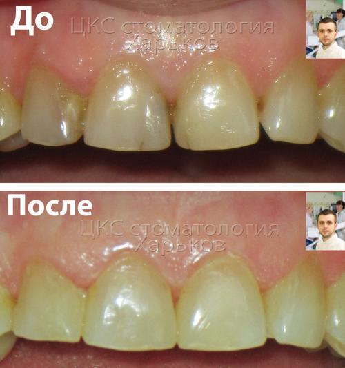 Верхний и нижний зубной ряд до и после лечения