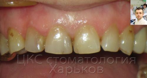 Передние зубы – кариес
