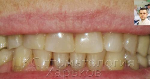 Верхний зубной ряд – улыбка после лечения