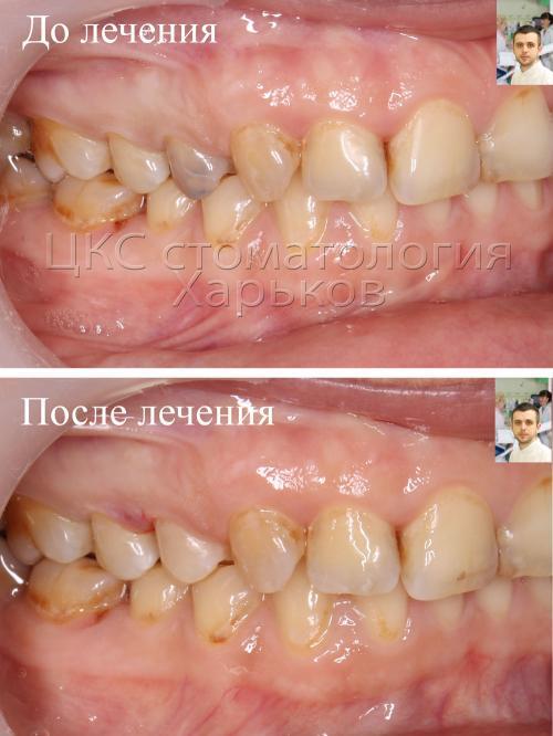 ДО и ПОСЛЕ лечения кариеса стоматология Харьков