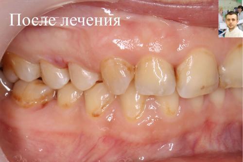 Зуб ПОСЛЕ лечения