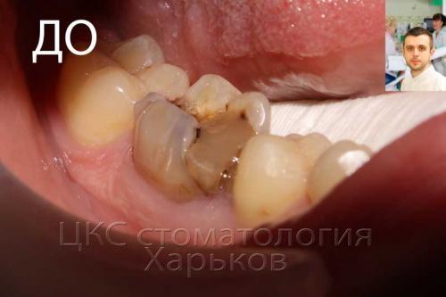 Неправильная пломба болит зуб