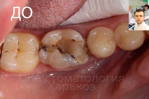 Зубная боль, плохая пломба