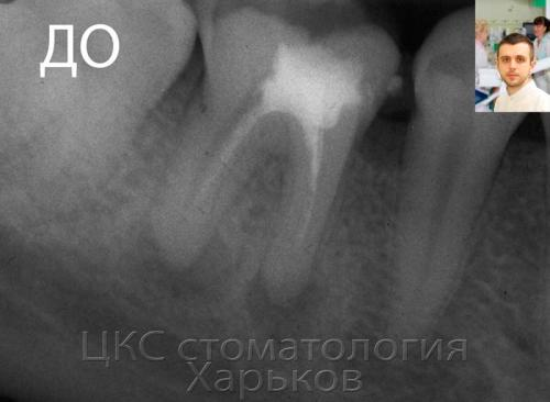 Рентгенограмма больного зуба