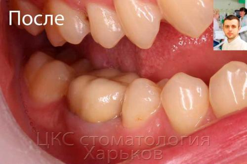 Зуб после лечения каналов и изготовления коронки