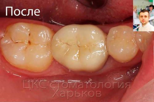Почему под пломбой временной болит зуб