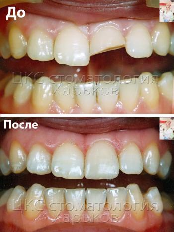 До и после восстановления переднего зуба