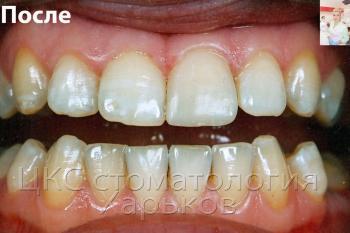 Реставрация переднего зуба фотополимерным материалом
