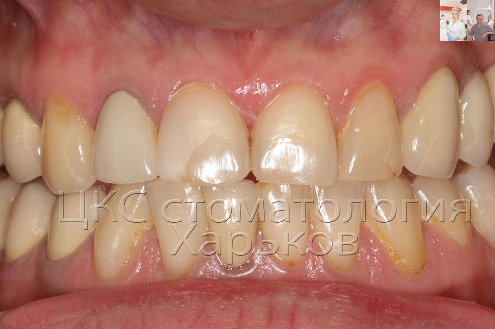 Чувствительность живого зуба под коронкой 64