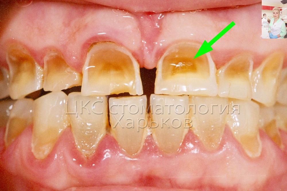 Как выровнять зубы без брекетов, способ выровнять зубы 91