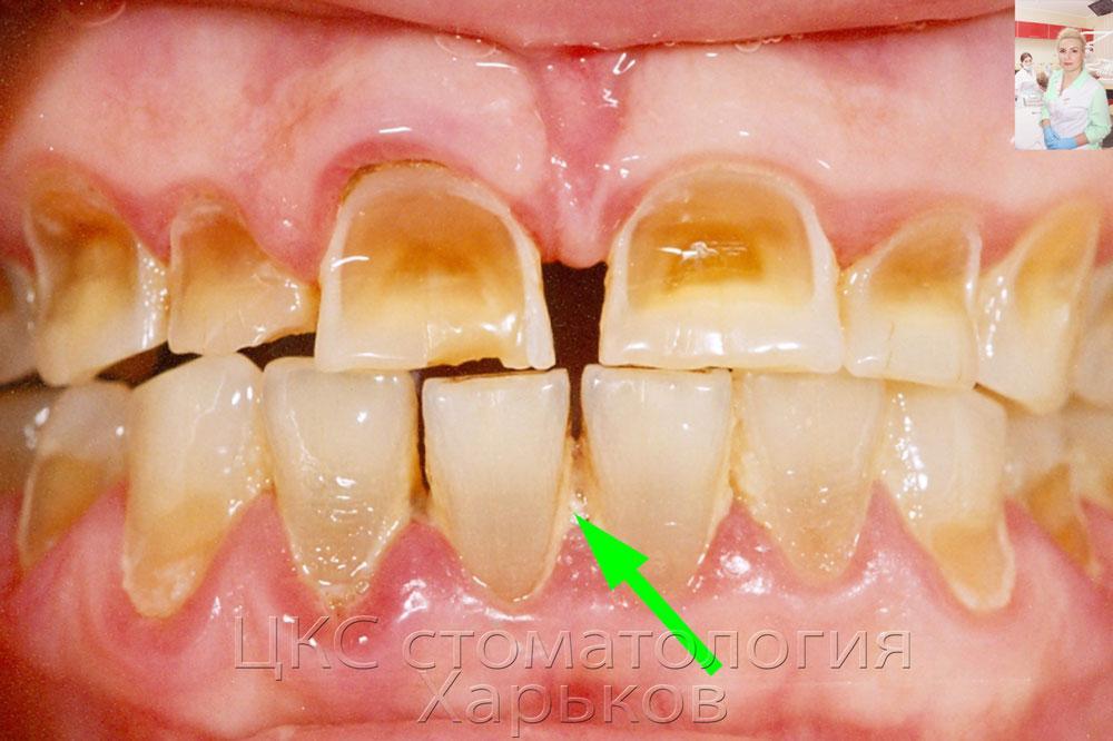 Сделать брекеты в домашних условиях для зубов