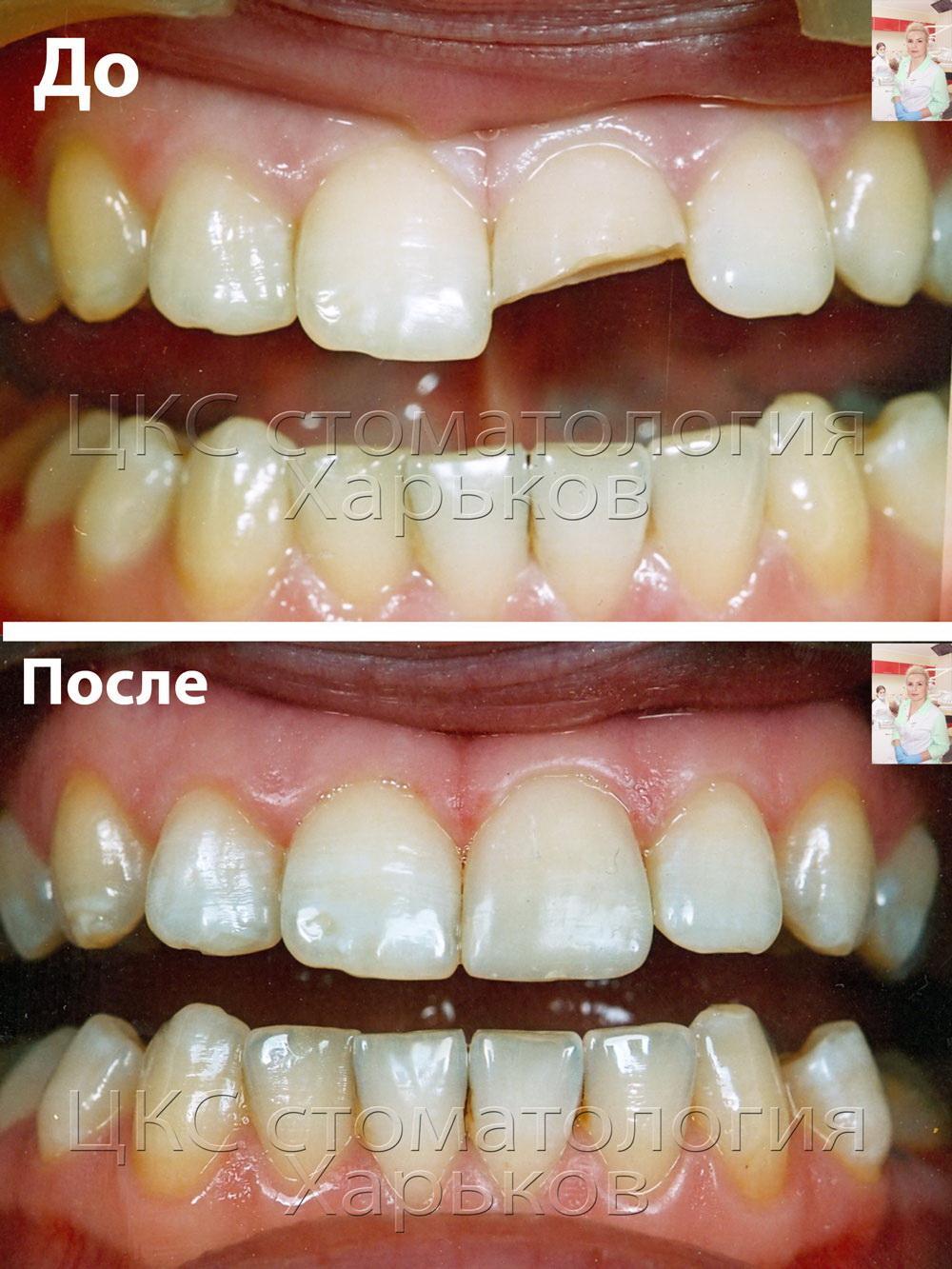 Восстановление зуба после перелома