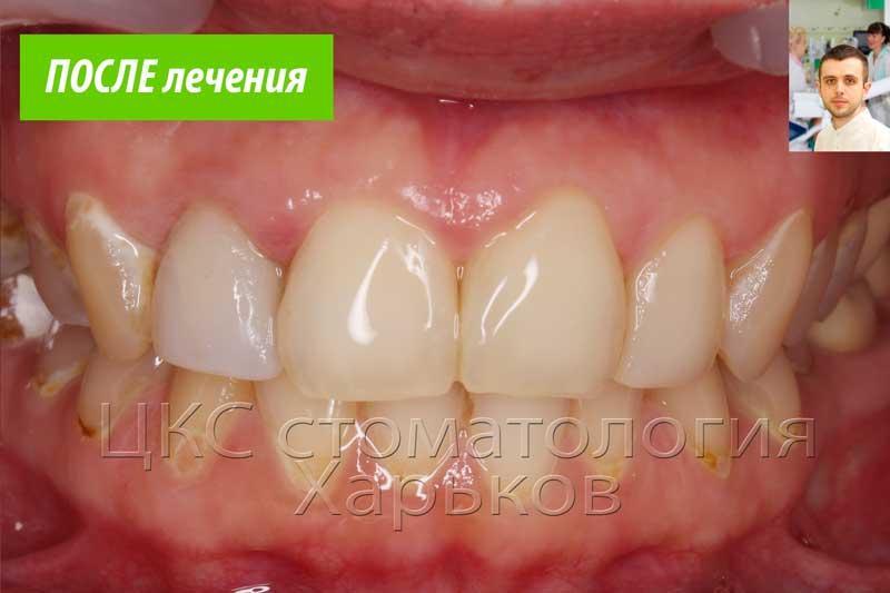 Красивые реставрации делают зубы естественными