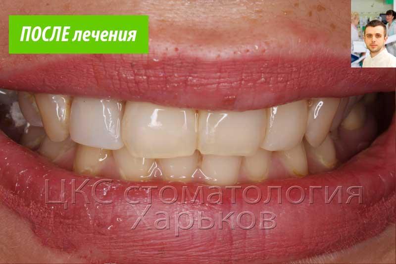 Красивая улыбка после лечения зубов