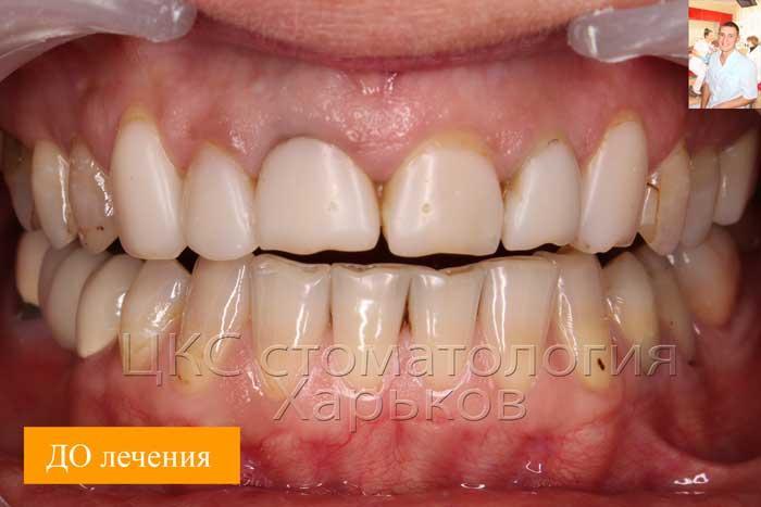 ДО лечения зубы не эстетичны