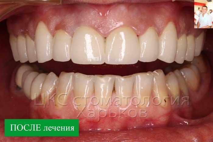 ПОСЛЕ лечения зубы эстетичны