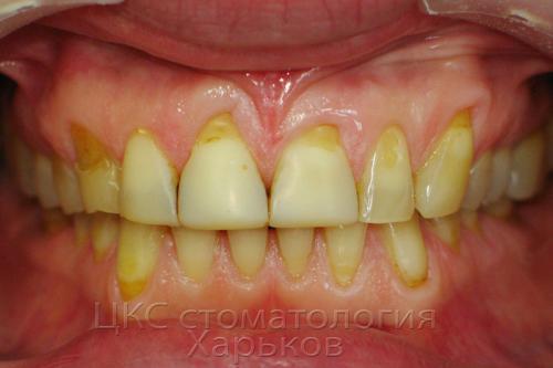 Фото до лечения зубов