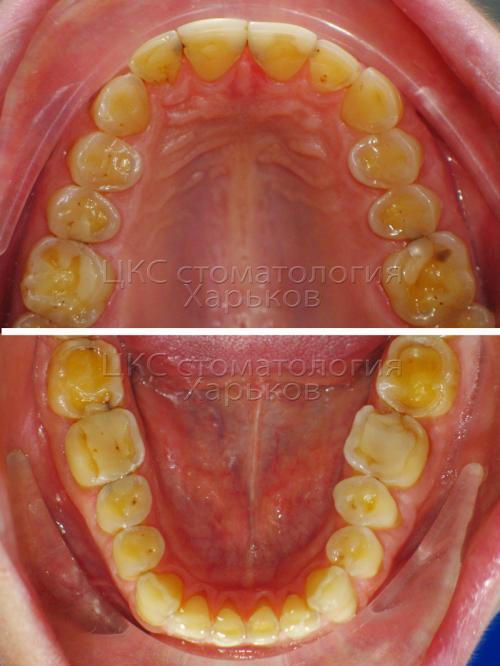 Верхний и нижний ряд зубов