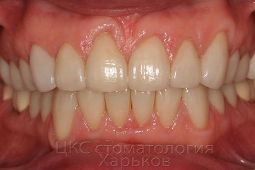 Зубы пациента после установки виниров