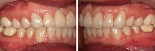 Фото прикуса зубов после установки виниров
