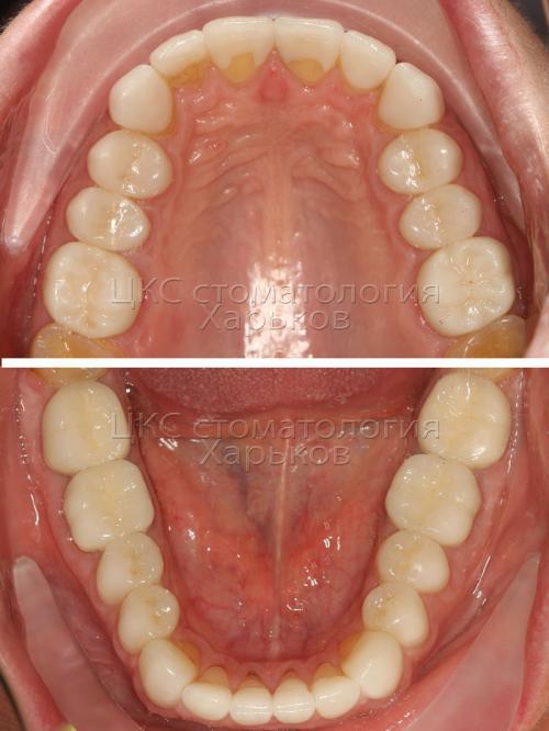 Фото жевательной поверхности после лечения