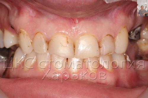 Неэстетическая стоматология
