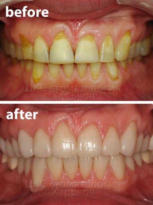 Передние зубы пациента до и после лечения