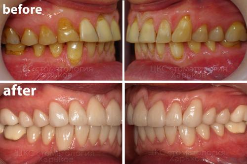 Вид сбоку – фото верхнего и нижнего зубного ряда