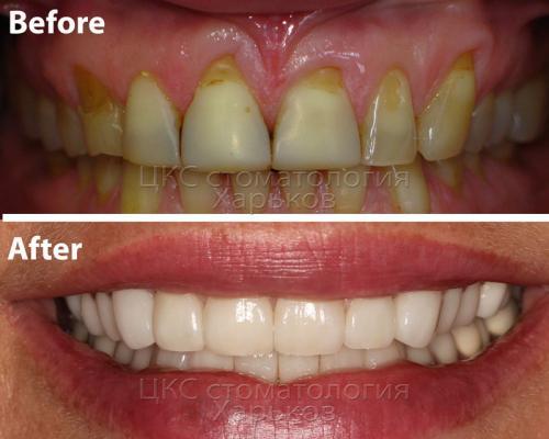 Фото – до и после лечения