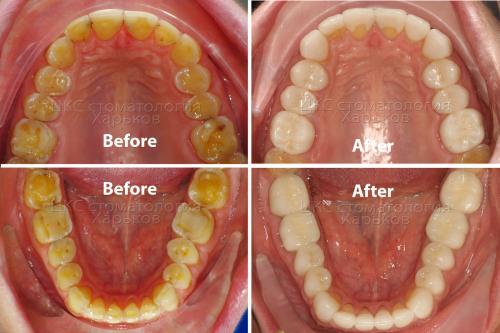 Результаты лечения зубов