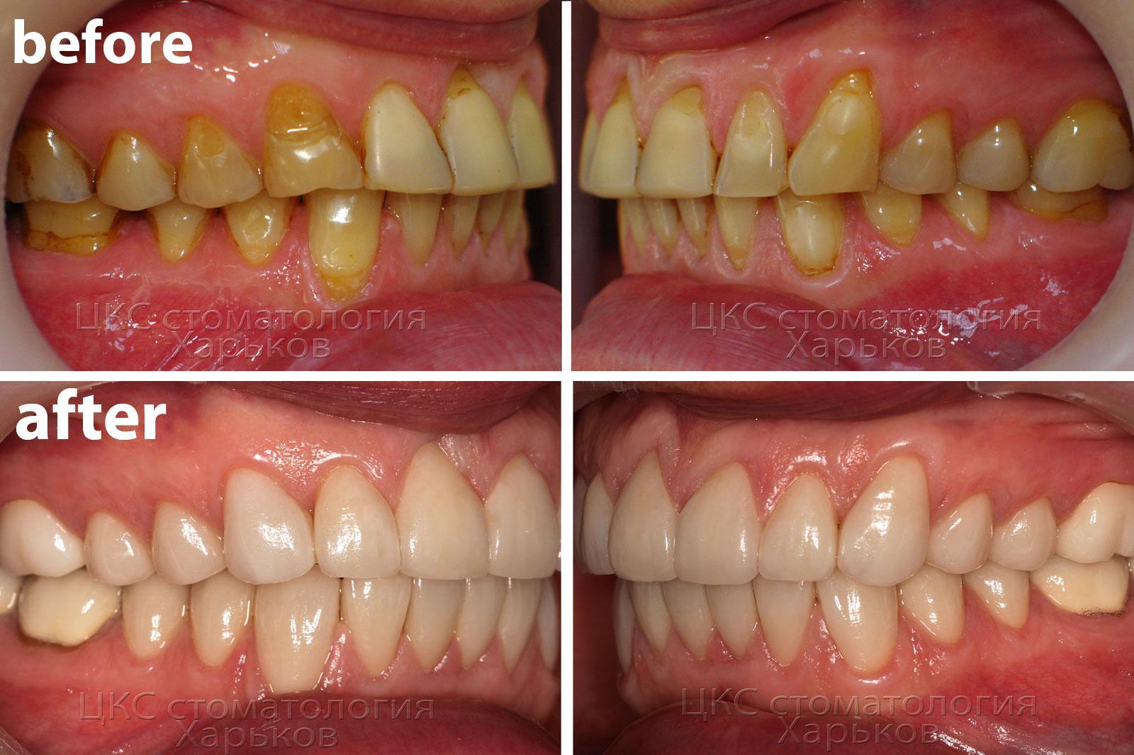 dental veneers купить