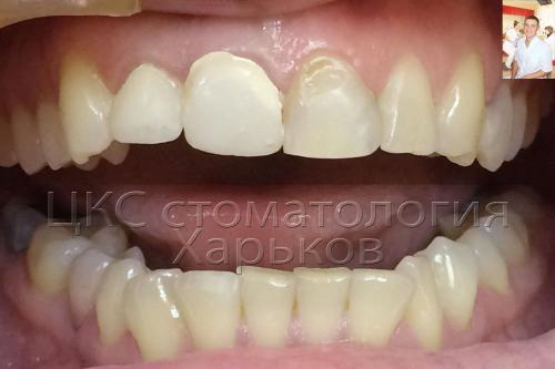 Фото передних зубов нуждающегося в отбеливании