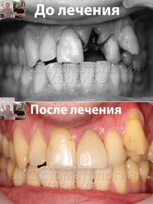 Результаты имплантации переднего зуба