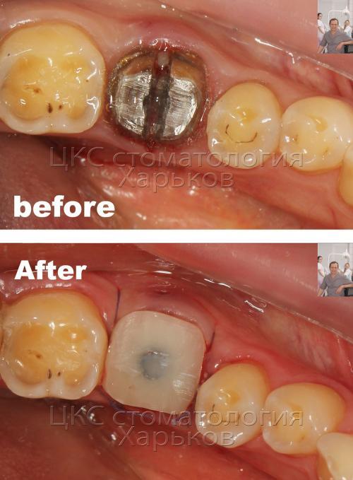 Экспресс имплантация зуба