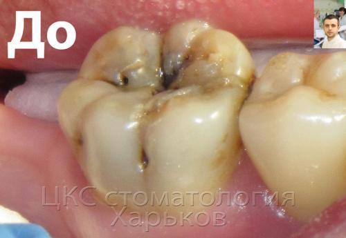 Кариес зуба, обширная полость