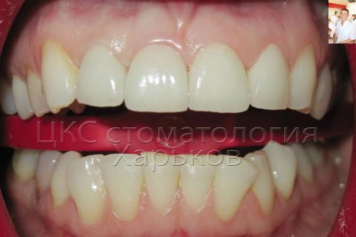 Отбеливание зубов – фото полости рта