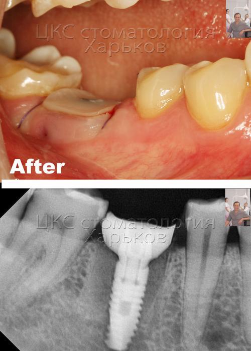 Лунка зуба после установки импланта заполнена костным графтом