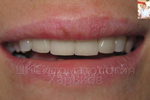 Фото улыбки пациента после отбеливания зубов