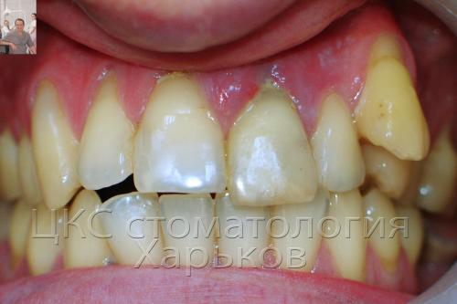Экспресс имплантация зубов в харькове