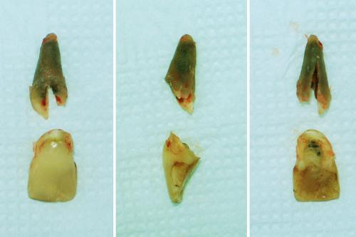 Удаленный зуб передний