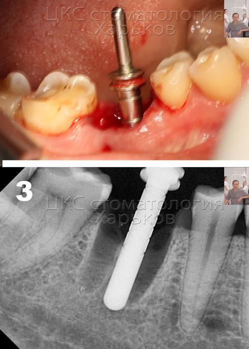 Удаление зуба и подготовка тела зубного импланта