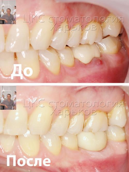 Зубной ряд – вид сбоку до и после лечения