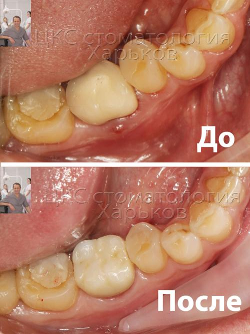 Фото зубов до и после лечения в клинки ЦКС