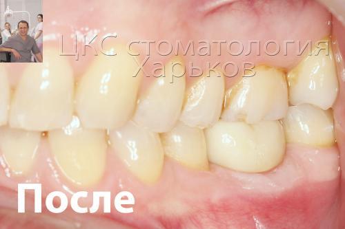 Зуб восстановлен коронкой выполненной из диоксида циркония