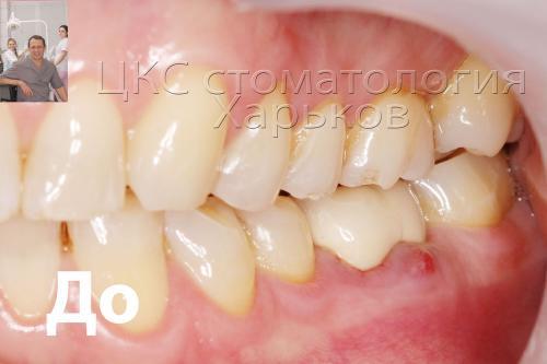 Фото верхнего зубного ряда – свищ на десне