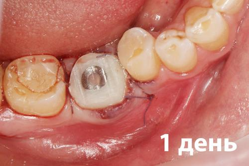 Удален зуб – вместо него вставлен имплантант