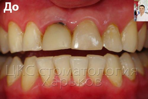 фото передних зубов до лечения