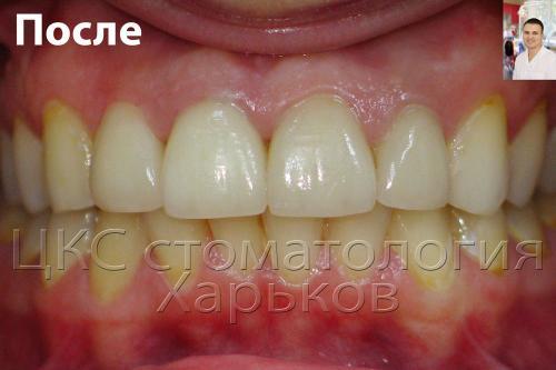 фото передних зубов после реставрации