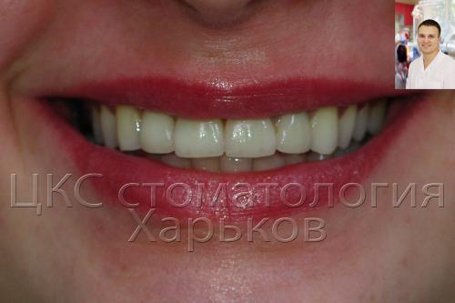 красивая улыбка пациента после реставрации зубов
